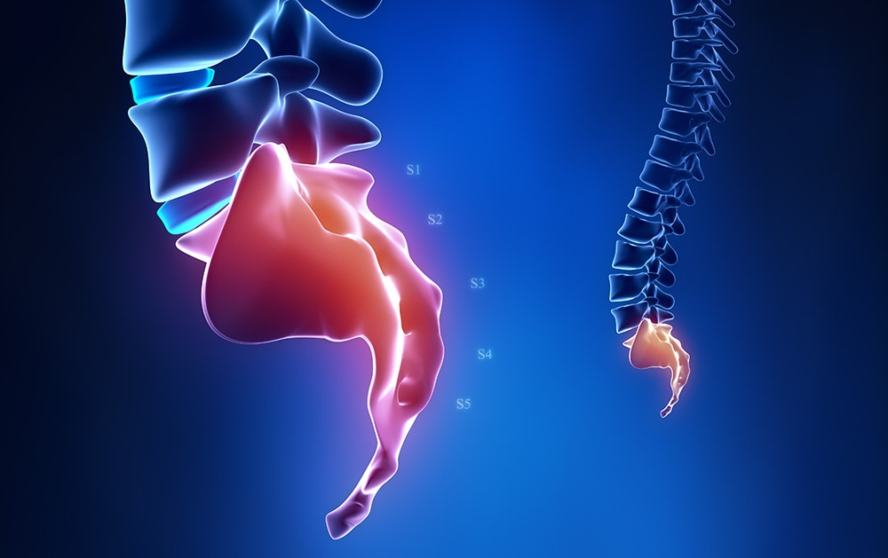 Infiltracija kokcigealne (trtične) kosti