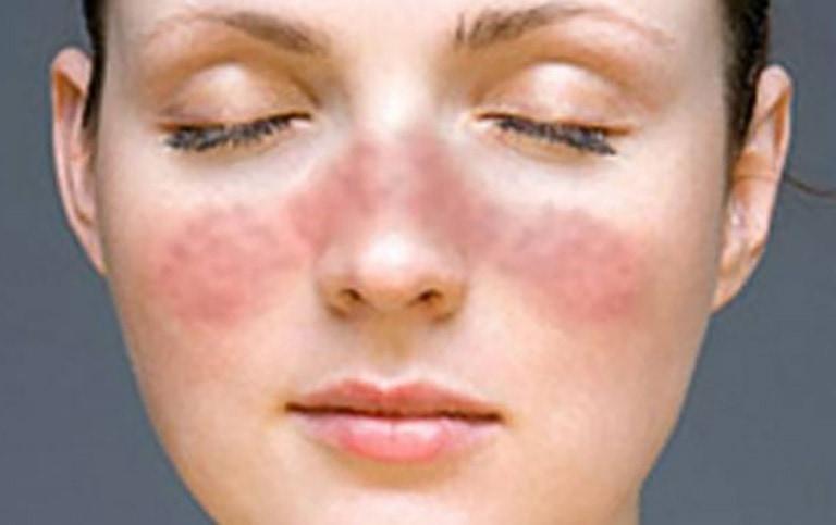 Lupus – bolest za sva vremena