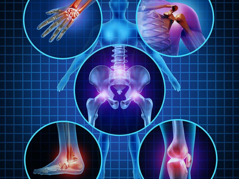 Reumatska groznica – liže zglobove, ali ujeda srce