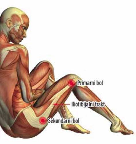 Iliotibijalna traka sa označenim mestima najačeg bola u predelu iznad kolena i spoljašnje strane kuka (slika preuzeta iz knjige Dijagnostka i lečenje bola, autora Branislava Antića)