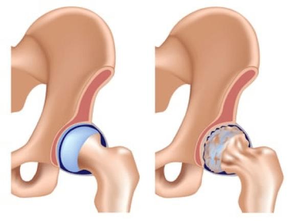 Levo je zdrav zglob, a desno osteortritis zgloba kuka